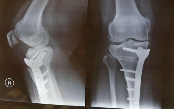 نمونه ای از عمل جراحی استئوتومی