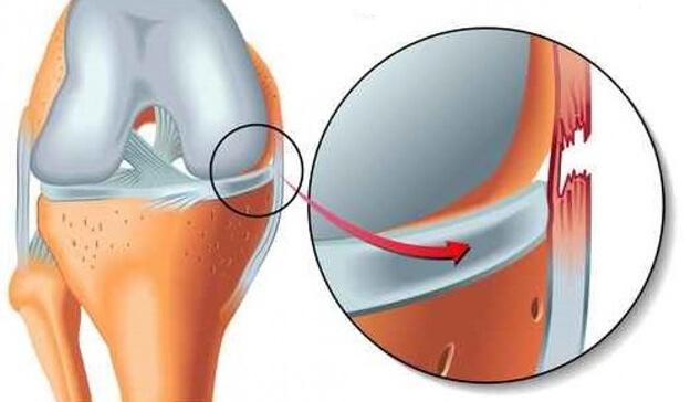 آسیب رباط جانبی داخلی (MCL)