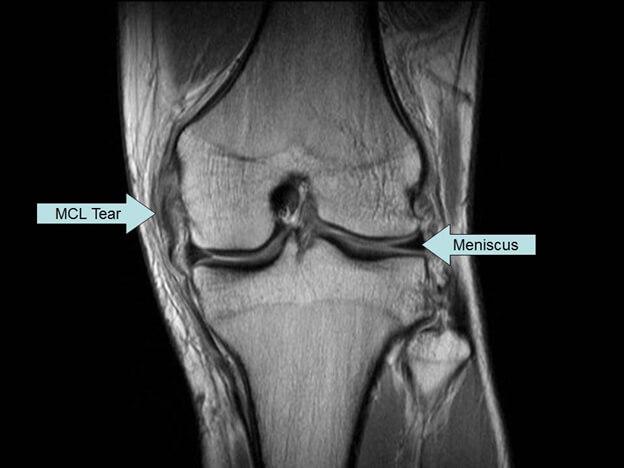 تشخیص آسیب رباط جانبی داخلی (MCL)