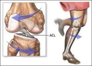 آسیب ACL