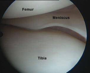 تصویر منیسک حین جراحی آرتروسکوپی