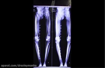 عمل جراحی تعویض کامل مفصل زانو