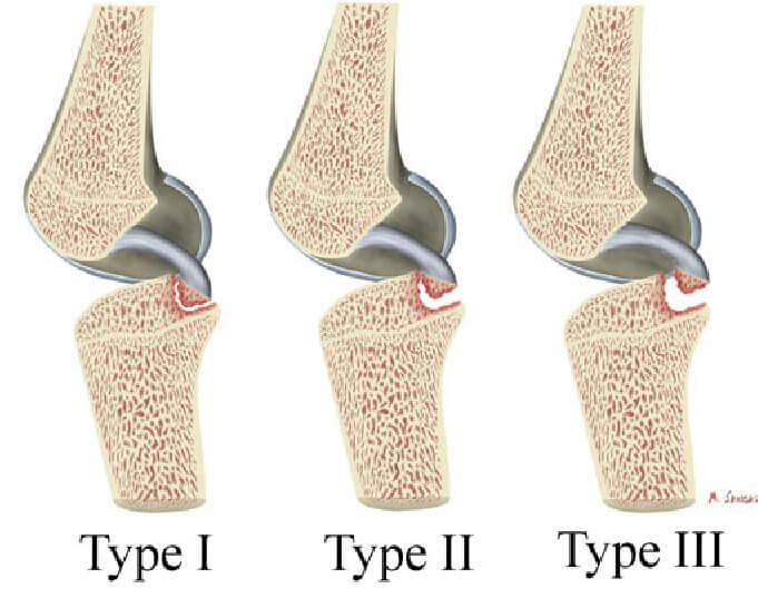 شکستگی کندگی رباط صلیبی خلفی (PCL Avulsion Fractur)