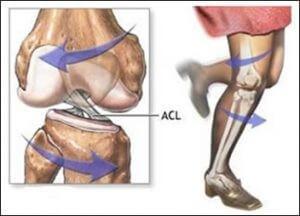 مکانیسم آسیب رباط صلیبی قدامی یا ACL