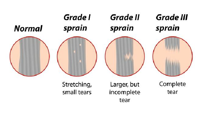 پیچ خوردگی زانو  (knee sprain)