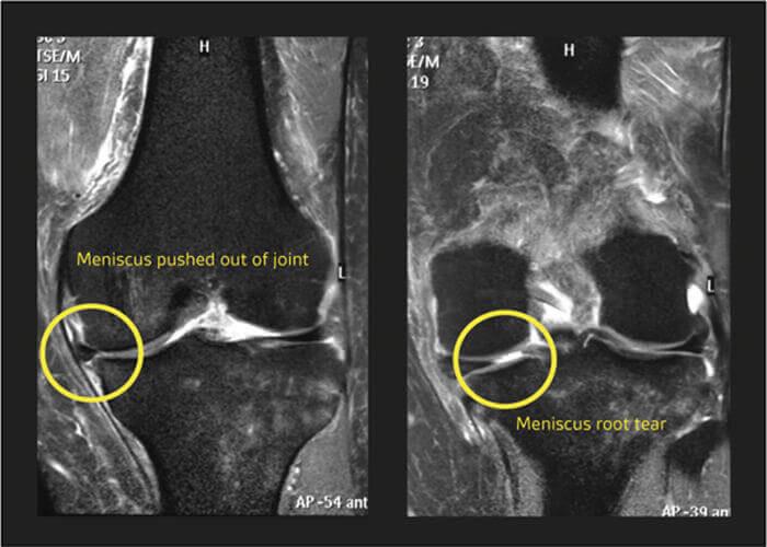 نمای MRI T2 از کندگی ریشه منیسک