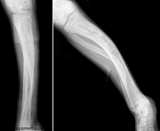 فیبرو دیسپلازی (Fibrous Dysplasia)