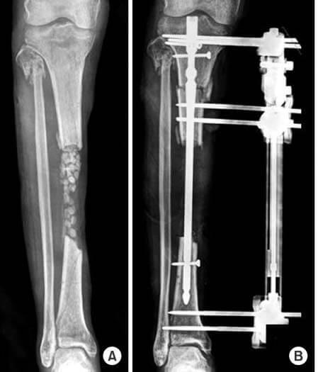 جراحی ترمیم استخوان به روش ترانسپورت استخوان