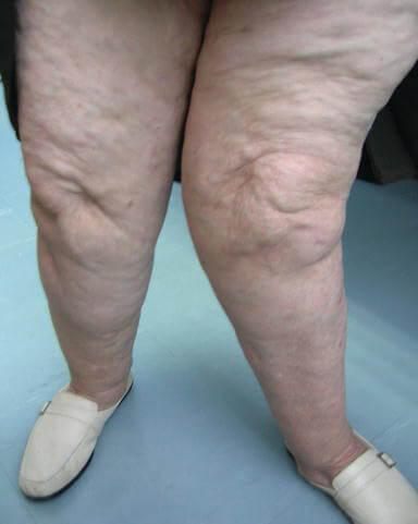 تاثیر استئوآرتريت زانو بر افزایش شیوع بیماریهای قلبی- عروقی