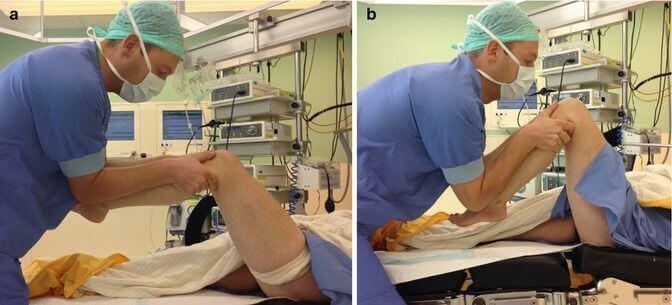 سفتی مفصل زانو پس از جراحی