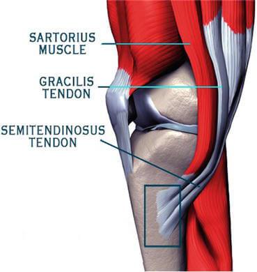 التهاب تاندون عضله سمی ممبرانوس (Semimembranosus tendinopathy)