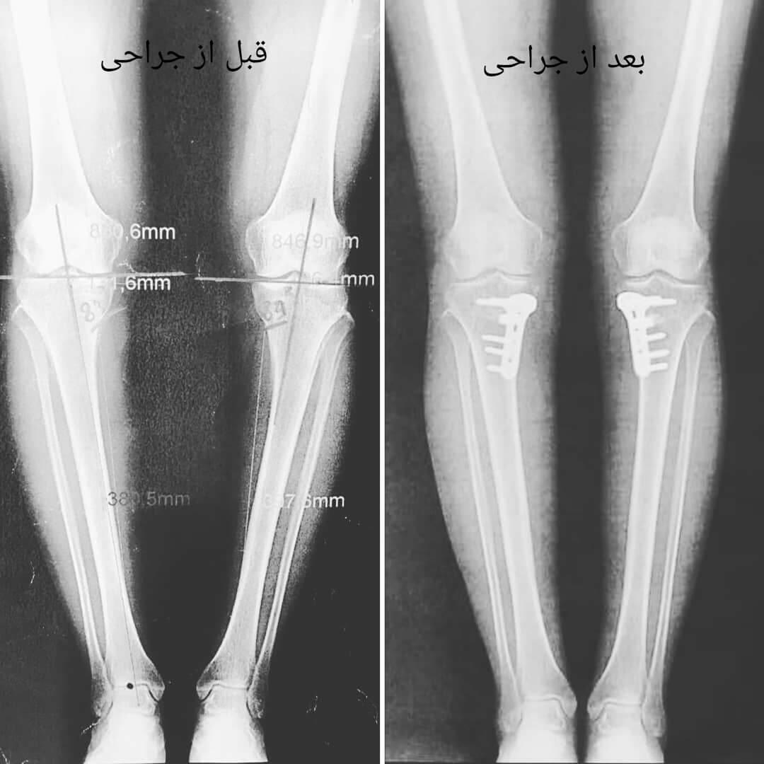 جراحی اصلاح پای پرانتزی