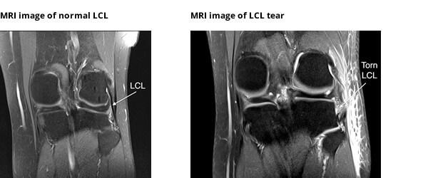 آسیب رباط جانبی خارجی زانو ( LCL )