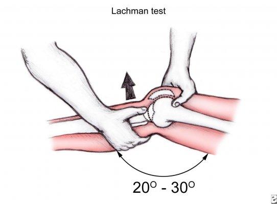 تست های ارزیابی پارگی رباط صلیبی قدامی(ACL)