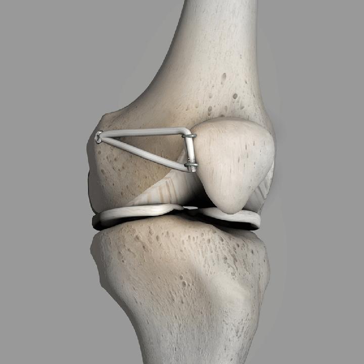 جراحی بازسازی MPFL  (لیگامان پاتلوفمورال داخلی)