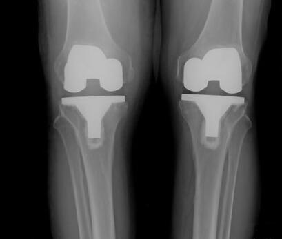 جراحی تعویض دو طرفه مفصل زانو (bilateral knee replacement)