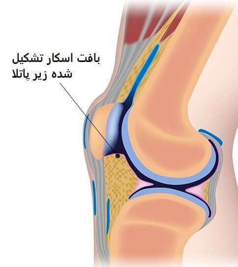 آرتروفیبروز ایجاد شده در مفصل زانو