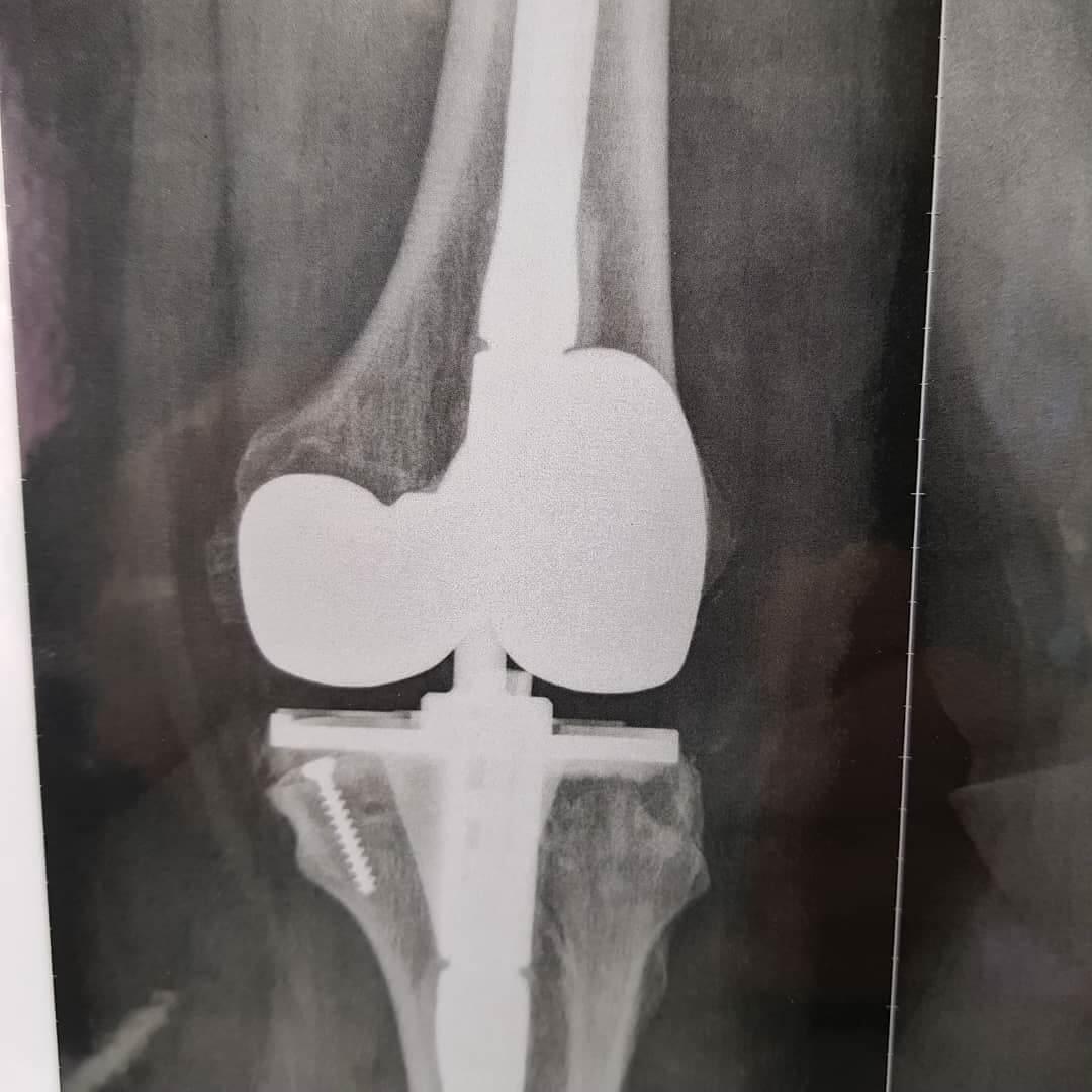 مراقبتهای قبل و بعد از جراحی تعویض مفصل زانو
