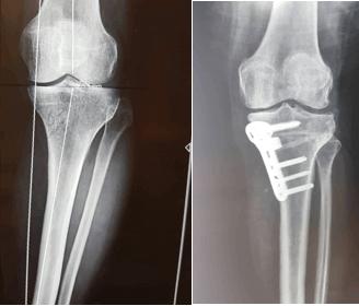استئوتومی پروگزیمال تیبیا (Proximal Tibial Osteotomy)