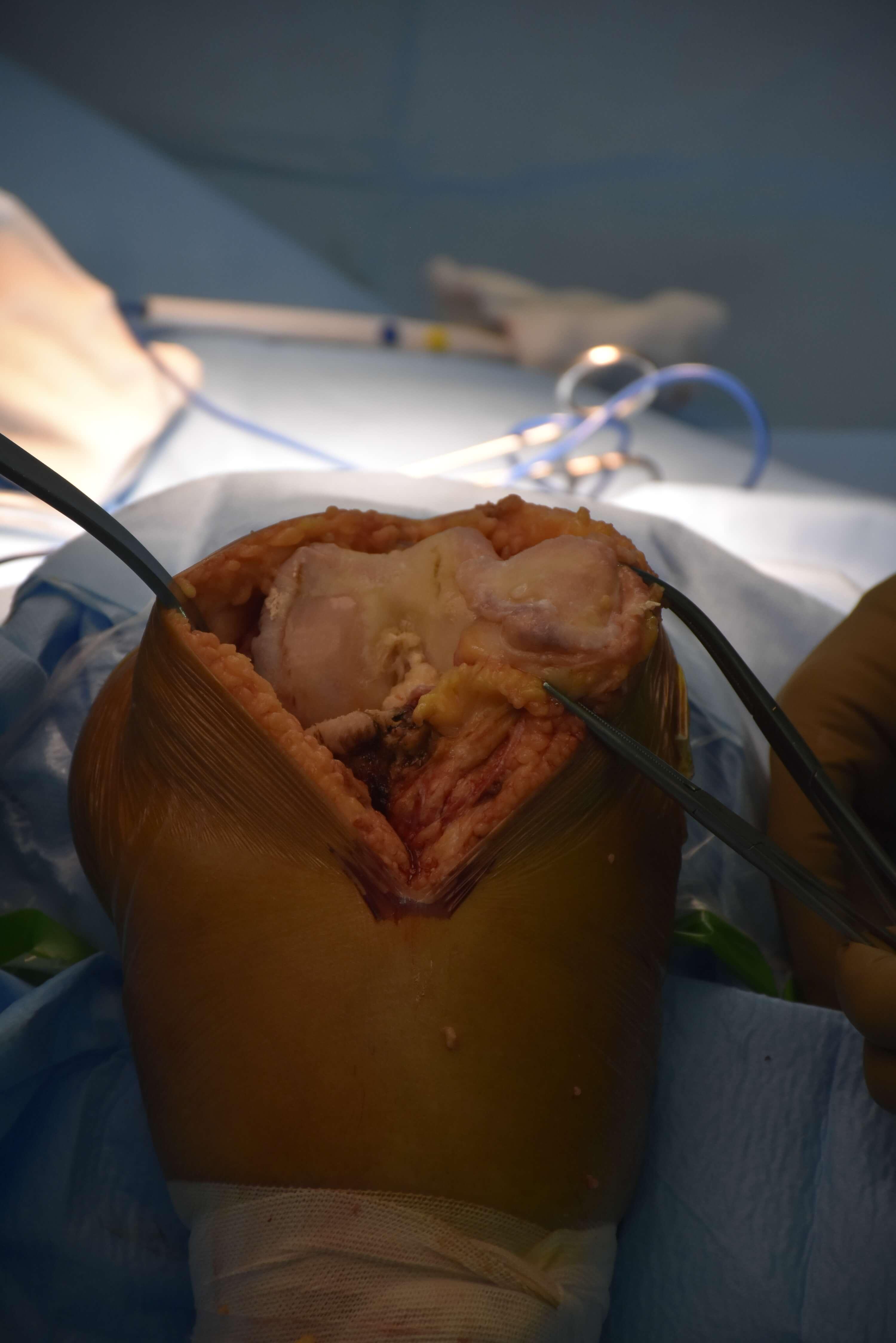 ایمپلنت مفصل زانو