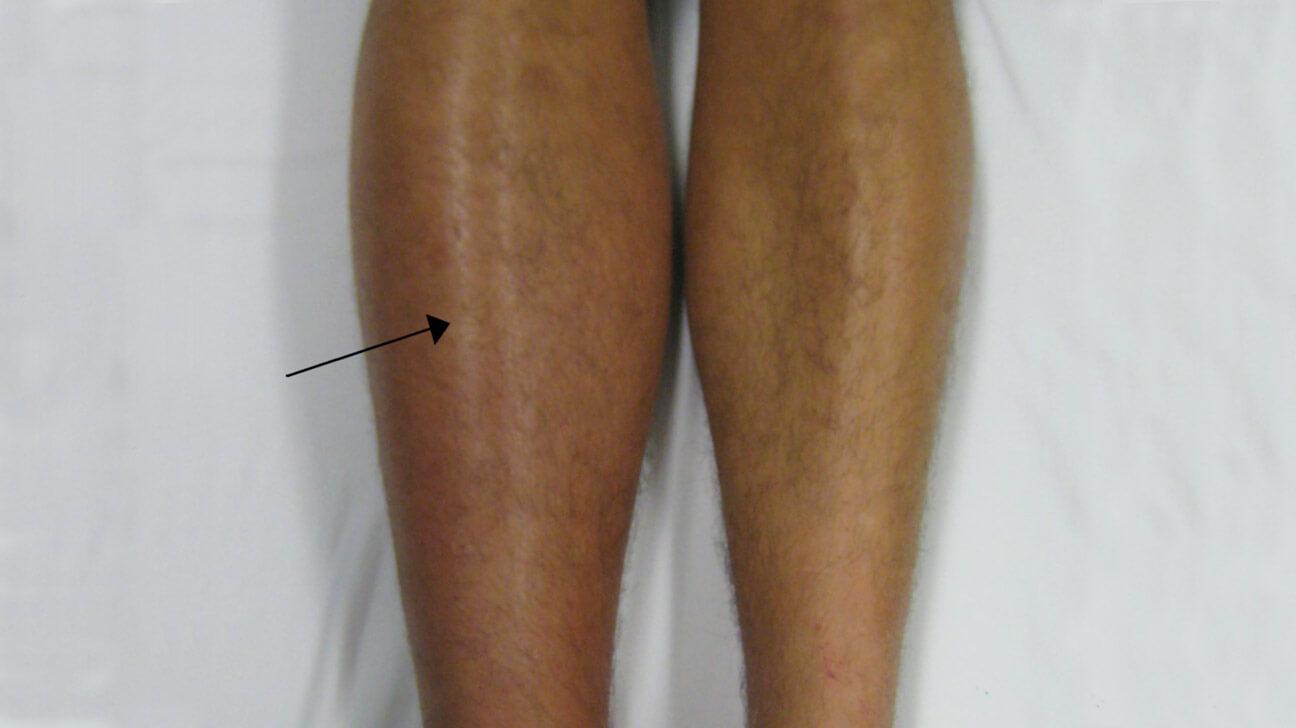 جراحی تعویض کامل مفصل زانو