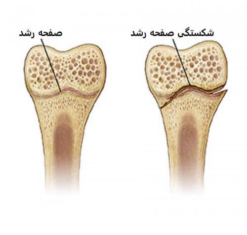 شکستگی های صفحه رشد اطراف زانو