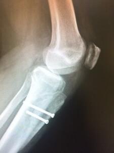 استئوتومی توبرکل تیبیا (Tibial Tubercle Osteotomy)