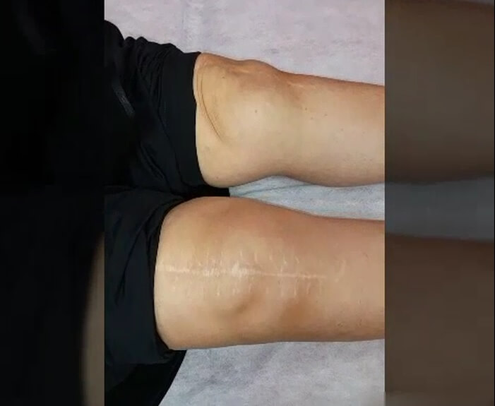 جراحی چند لیگامانی زانو (Complex Knee Surgery)