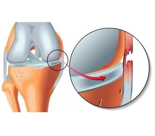 بازسازی رباط جانبی داخلی (MCL)