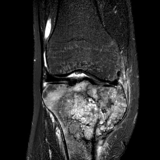نمای MRI استئوساکروم