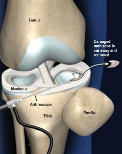 پارشیال منیسککتومی (Partial Meniscectomy)