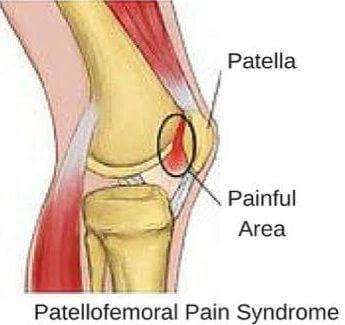 عوامل مستعد كننده سندرم درد پاتلوفمورال