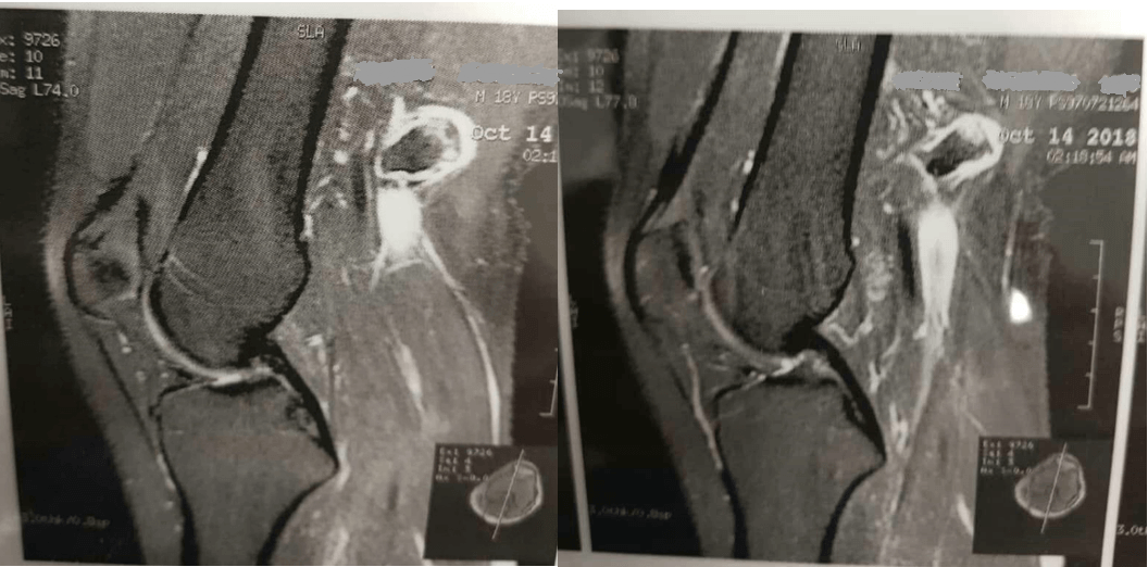 نمای MRI از استئوکندروم