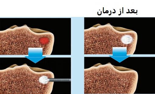 نکروز استخوانی زانو (SPONK)