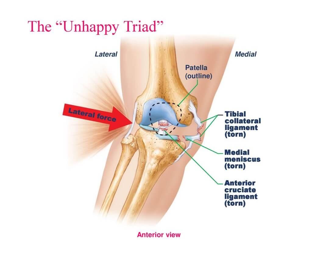 سه گانه بد اقبالی - Unhappy Triad (آسیب MCL، ACL و منیسک داخلی)