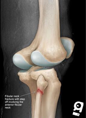شکستگی سر استخوان فیبولا ( نازک نی)