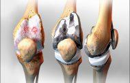 تعویض مفصل زانو ( آرتروپلاستی زانو )