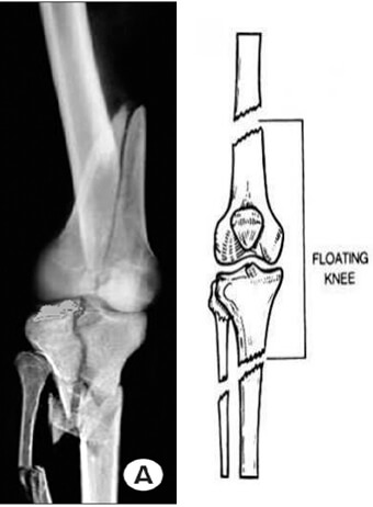 زانوی شناور (Floating Knee )