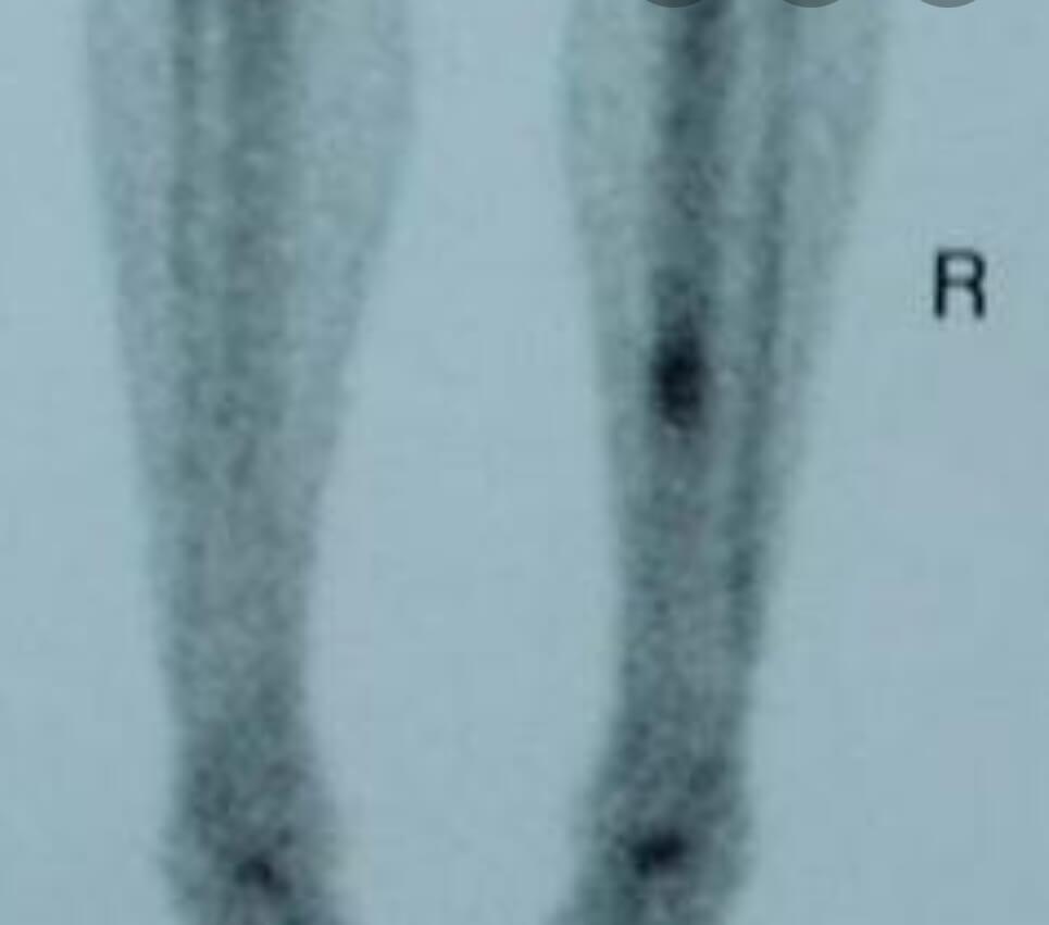 نمای bone scan