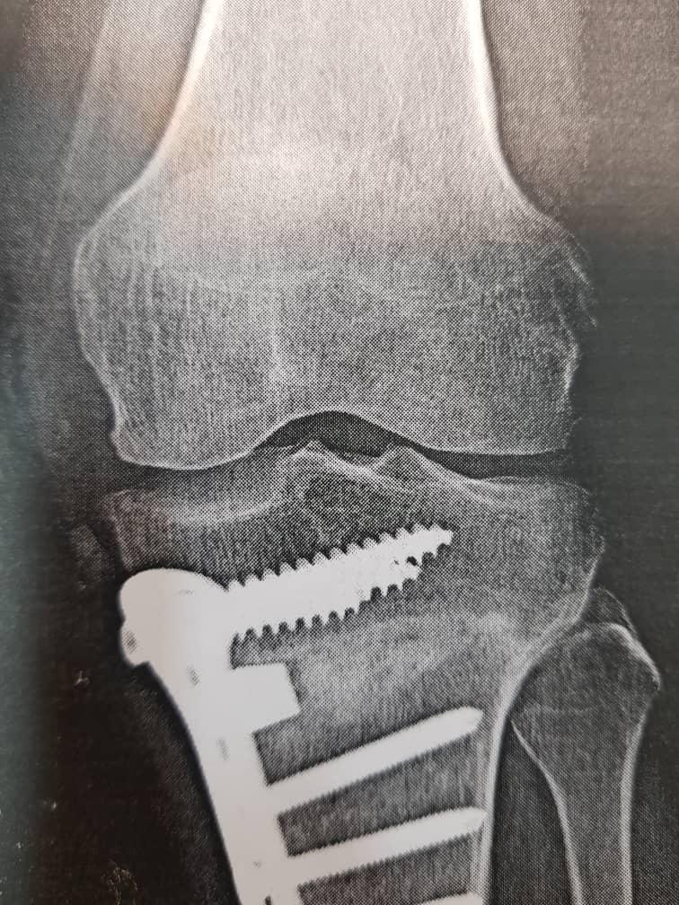 جراحی استئوتومی زانوی پرانتزی