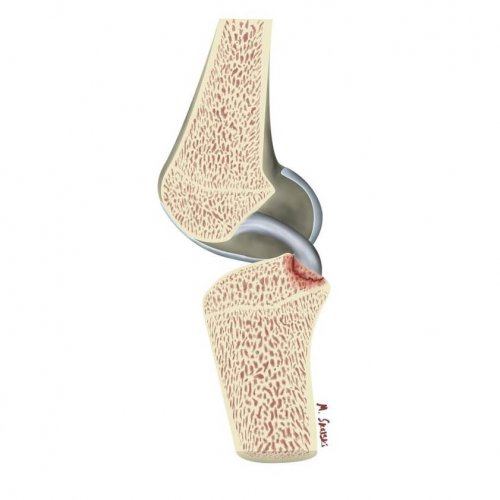التهاب تاندون کشکک زانو (patellar tendinopathy)