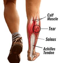 پارگی عضلات و كشیدگی پشت ساق (calf strain)