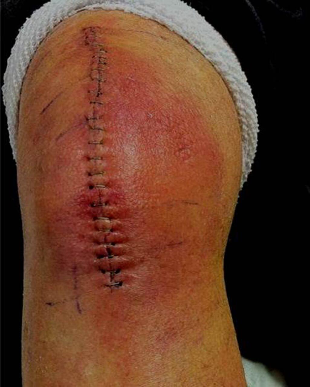 جلوگیری از عفونت در جراحی تعویض مفصل زانو