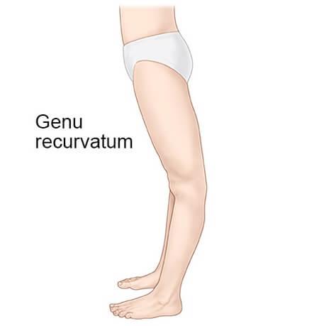 ژنو رکورواتوم یا عقب زدگی زانو (Genu Recurvatum)