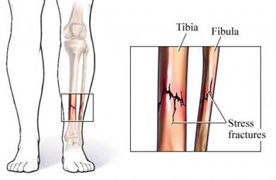 شکستگی استرسی تیبیا و فیبولا