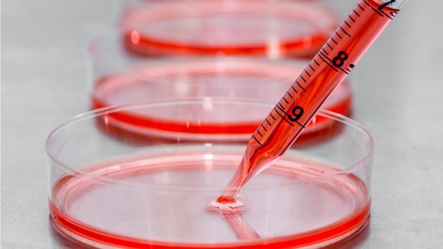 نقش درمانی سلول های بنیادی (Stem Cell Therapy)