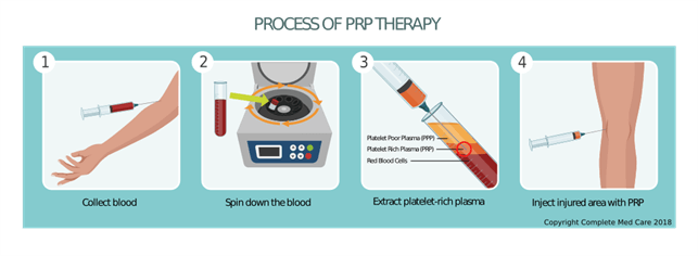 PRP (پلاسمای غنی از پلاکت)