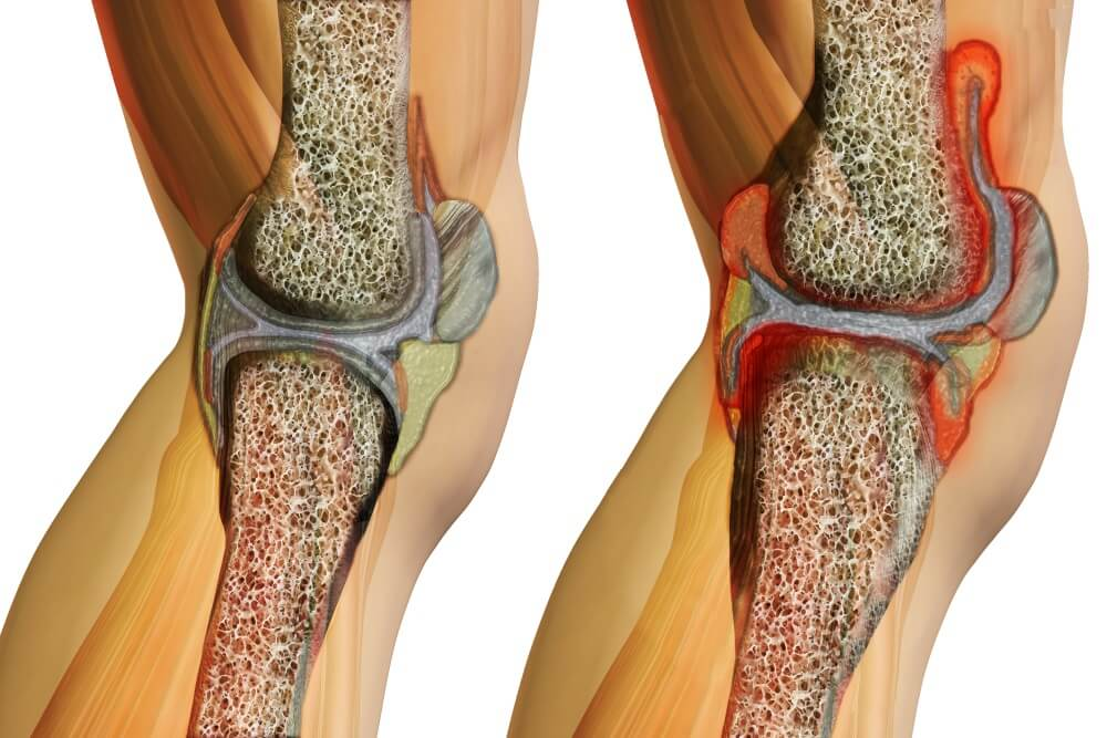 آرتریت ایدیوپاتیک جوانان ( juvenile idiopathic arthritis)