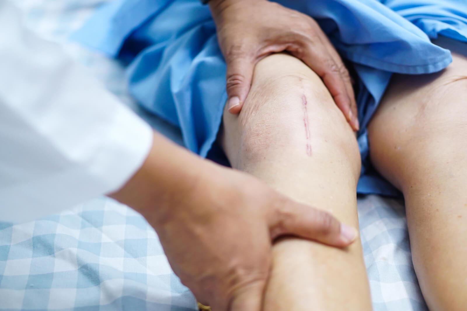 دردهای پس از تعویض مفصل زانو