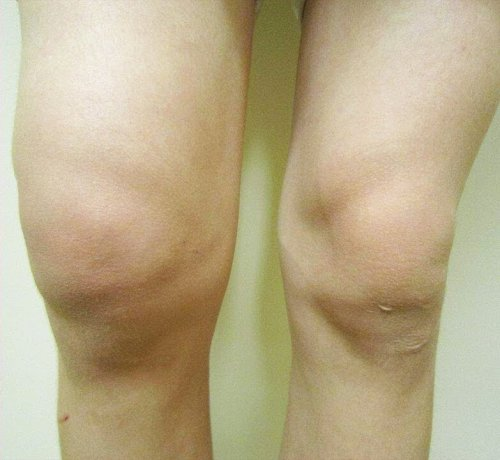 تورم زانو (knee effusion)